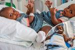 Lékaři oddělili siamská dvojčata srostlá pánví: Obě holčičky přežily