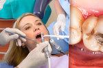 """Změny u zubaře se blíží. Amalgám """"na pojišťovnu"""" bude jen v kapslích"""