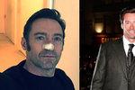 Hugh Jackman kvůli rakovině na další operaci. Nebuďte blázni jako já, vzkazuje