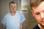 Pacient s dokonale transplantovanou tváří: Můj nový obličej? Učiněný zázrak!