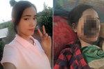 ŠOKUJÍCÍ FOTO: Kráska (18) přišla o obličej po zákroku u zubaře. Váží 38 kilo a bojuje o život
