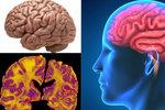 Mozky Čechů ohrožuje Alzheimer a demence. Každé 3 vteřiny někdo onemocní