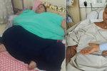 Půltunová Egypťanka po operaci »zhubla« 250 kilo! Už není nejtěžší žena světa