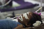 V nemocnici zemřelo 60 dětí, ředitel dostal výpověď. Může za to i nedostatek lékařského kyslíku
