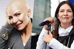 Exkluzivní zpověď Anny K. o boji s rakovinou: Teď čekám druhou operaci