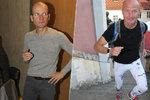Dalibor Gondík promluvil o nemoci a přiznal: Vím, že vypadám strašně!