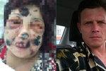 Kanibal 4 hodiny požíral ženu. Ukousl jí nos i uši, ale přežila