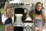 Známá modelka ochrnula od krku dolů: Při běžném cviku si zlomila páteř!