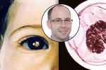 Zákeřný nádor může oslepit dítě. Prohlížejte si dobře fotky pořízené s bleskem!