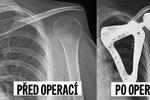 Unikátní zákrok: Studentovi po nádoru lékaři vytiskli a voperovali nové rameno