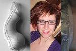 Petra (30): Aorta se mi mohla roztrhnout kdykoliv! Nyní ji chrání speciální síťka