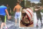 Čtyři svalovci ubili Adama téměř k smrti: Brutální útok si točili na video!