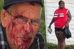 Vrať se do své země, křičela žena na migranta (91) a rozbila mu obličej cihlou