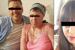 Žena (27) se zastala trpící sousedky: Přítel ji polil benzínem a zapálil!