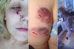 Násilník zbil těhotnou expřítelkyni. Nechal ji s proraženým bubínkem a zkrvaveným obličejem