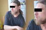 Postiženého Michala v Jirkově brutálně zbili lupiči: Slavný zpěvák nabízí odměnu