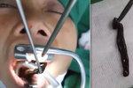 Žena si stěžovala na silné migrény. Doktoři jí z krku vytáhli živou pijavici