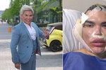 Ken Rodrigo Alves zveřejnil děsivé fotky obličeje! Lifting pomocí nití se mu krutě vymstil