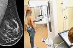Unikátní mamograf odhalí rakovinu prsu spolehlivěji! Lékařka: Je to i méně bolestivé!