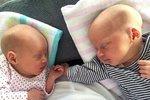 """Extrémně vzácná dvojčata šokují lékaře: Mají """"zázračnou"""" DNA!"""