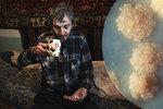 V Česku zabíjí tuberkulóza. Šíří ji i Ukrajinci a bezdomovci, problém mají kuřáci