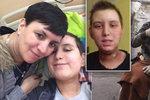 Veronika přišla o sluch a sliny. Po léčbě rakoviny pomáhá nemocným dětem