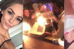 Popálená Týnuš Třešničková konečně odhalila obličej! A výsledek vám vytře zrak