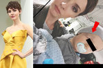 Krásná moderátorka Lašková si prožila chvíle hrůzy: Zranění syna a návštěva ambulance!