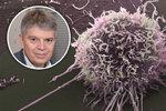 """Konec """"tichého zabijáka žen""""? Češi vyvíjí lék proti rakovině vaječníků"""