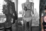 Na pokraji smrti vážila 24 kilo. Jana (21) porazila anorexii a řekla své přání