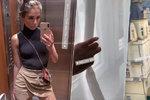 Nečekaná návštěva ve Varech: Popálená youtuberka Týnuš! Tajné procedury!