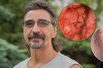 Rakovina vzala Zdeňkovi čelist, lícní kost, kus jazyka: Přežil a lékaři mu vrátili tvář!