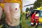 Dva zásahy bleskem během měsíce: Oba muži (26 a 28) jako zázrakem přežili!