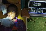 Chlapec (7) si stěžoval na bolesti dásně. Z úst mu vyoperovali přes 500 zubů