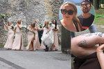 Horor ženicha při rozlučce v Praze: Nevěsta si na čtyřikrát zlomila nohu! Amputace byla otázkou minut