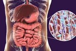Muž byl kvůli vzácné nemoci neustále opilý: Vyléčila ho fekální transplantace