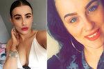 Těhotnou krásku (25) napadl brutální lupič: Zlomil jí dvě žebra a zkopal ji, až potratila