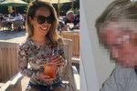 Modelka poleptaná kyselinou odhalila šokující foto po útoku: Znetvořil ji expřítel