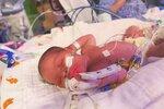 Nejmladší pacient s koronavirem: Miminko se narodilo nakažené