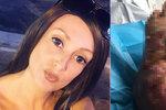 Ženu na dovolené kousl brouk a málem přišla o nohu: V nemocnici jí řekli, že je jen opilá!