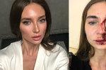 Plastická chirurgie z pekla: Lékařka napadla herečku při výplni rtů jejím vlastním mobilem