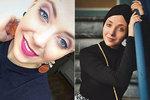 Slováčková (24) o rakovině: Mám za sebou první chemo a oholenou hlavu!