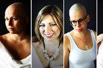 Video, které vás dojme! Statečné ženy s rakovinou ukazují, jak krásné mohou být! A popsaly své příběhy