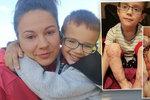 Jakub (4) přišel o prsty na nohou i rukou: Maminka shání peníze na operaci, která mu má pomoci chodit
