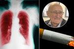 Zdeněk kouřil 40 cigaret denně, dostal zákeřnou chorobu plic. Až třetina Čechů jí trpí
