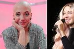Anička Slováčková bojující s rakovinou: Ukázala nové vlasy!