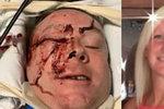 Policista mezi životem a smrtí: Jeho žena sdílela fotku s dojemným vzkazem
