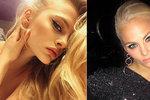 Modelka bojuje o život po záhadném pádu z 3. patra: Polonahou ji na mrazu našel uklízeč
