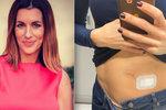 Lucie Křížková na chirurgii: Zákrok jí možná zachránil život!