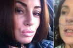 Zdravá a mladá máma dostala koronavirus: Je to jako  mít sklo v plicích! řekla ve videu